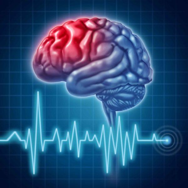 29 октября отмечается Всемирный день борьбы с инсультом